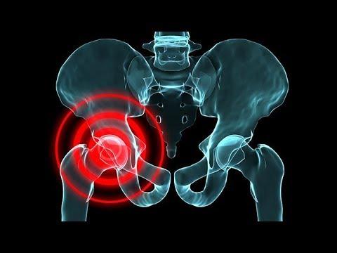 hip pain burning - YouTube