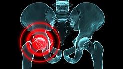 hip pain burning