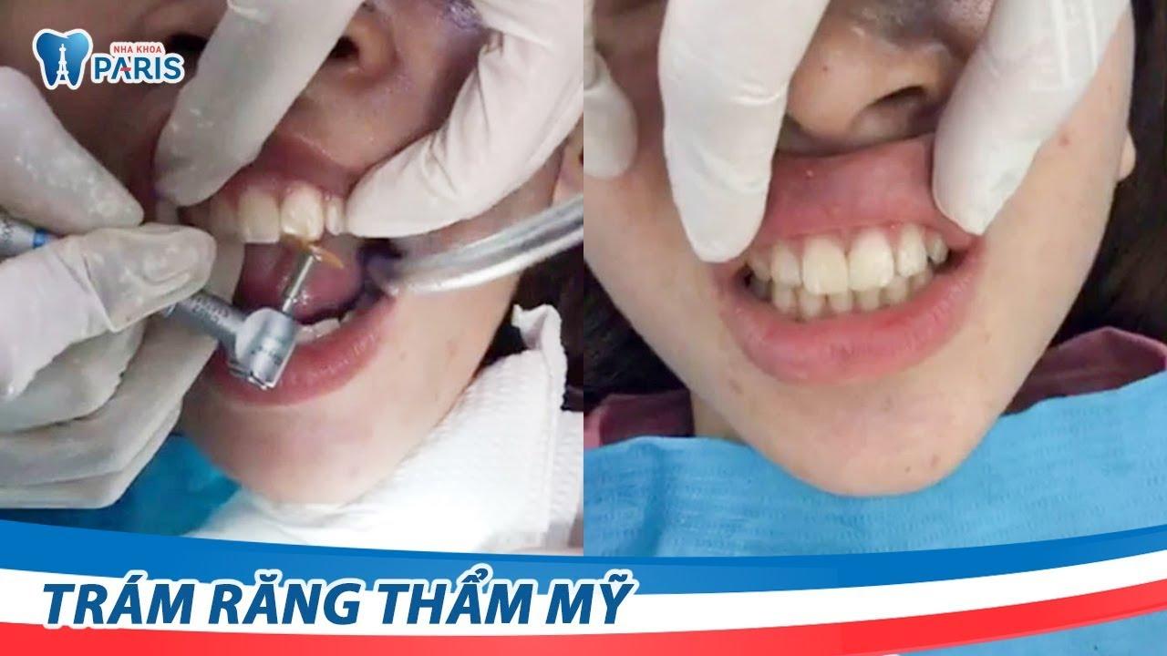 Trám răng thẩm mỹ Laser Tech – Khắc phục răng thưa nhanh chóng - YouTube