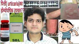 Urticaria! Homeopathic medicine for Urticaria?? explain!