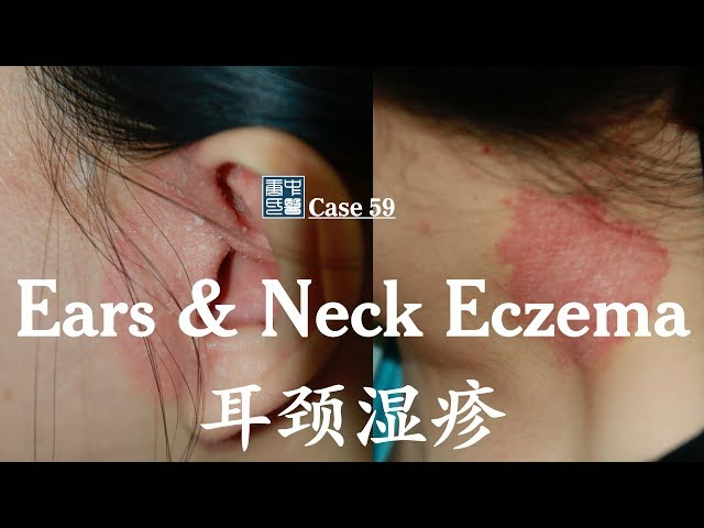 Ears and Neck Eczema, 耳颈湿疹