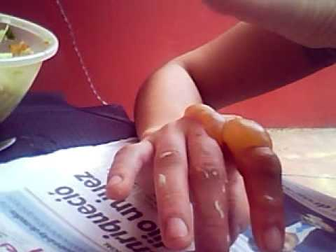 Como curar una quemadura con ampolla reventada
