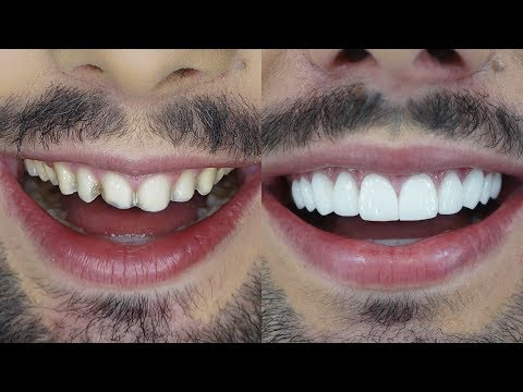 Odontología sin dolor: Sedación Profundaиз YouTube · Длительность: 50 с