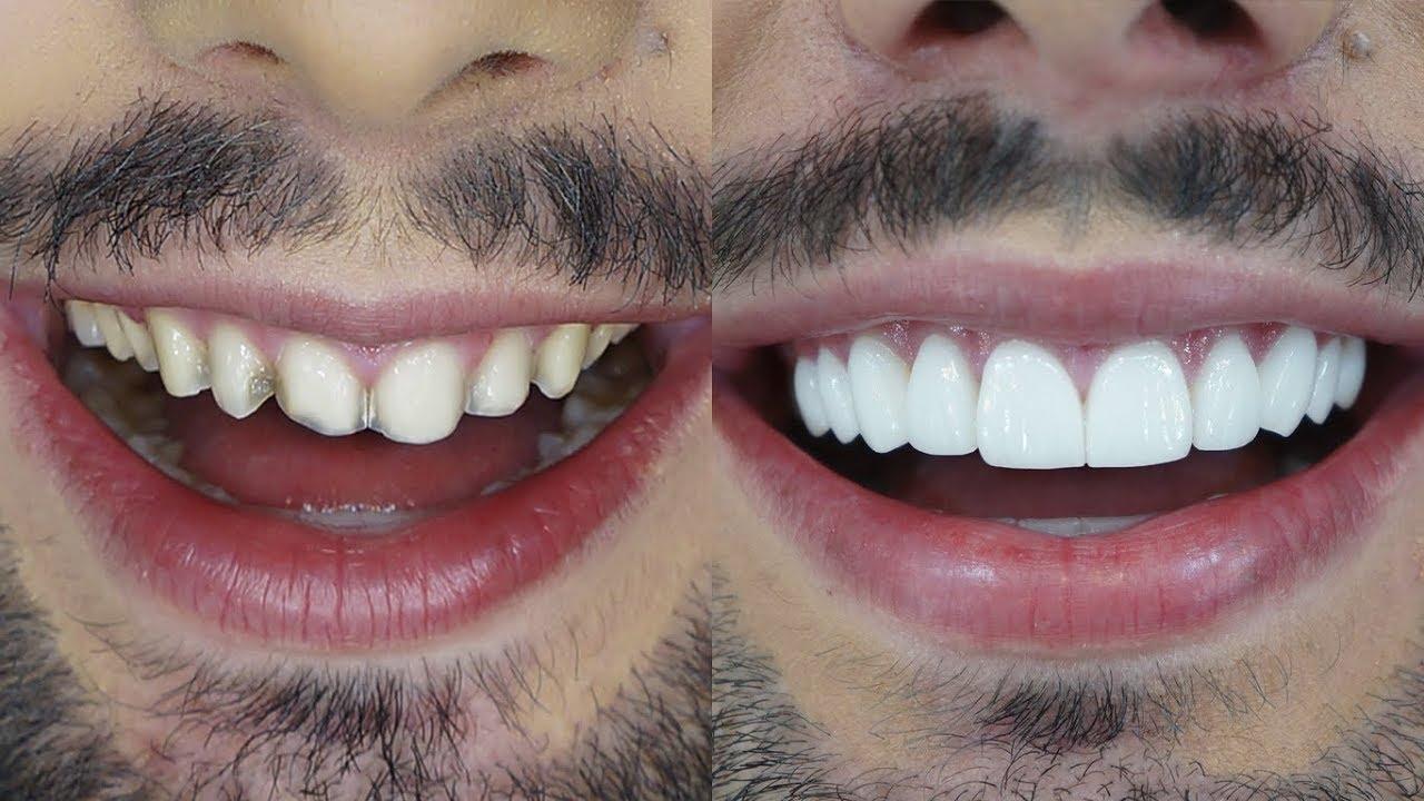 Resultado de imagem para lentes de contato dental