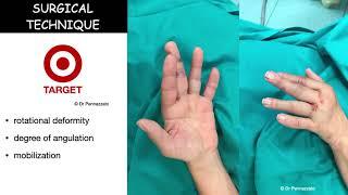 Percutaneous intramedullary screw fixation of metacarpal and phalangeal fractures