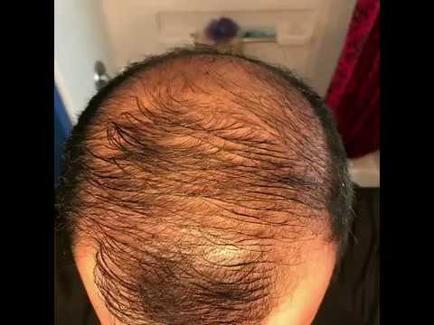 10 months usingminoxidil - Rogaine 5% Before & After results