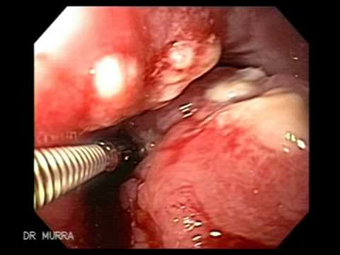 Endoscopy Of Esophageal Cancer Youtube