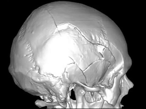 Множественные переломы костей свода черепа