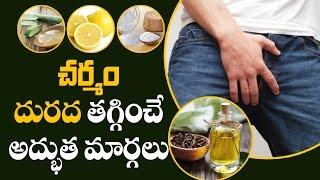 చర్మం దురద  తగ్గించే అద్భుత మార్గాలు    Home Remedy for Itching   Aarogya Sutra