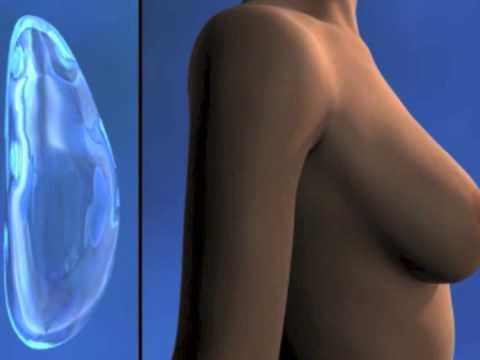Feofilaktova la operación al pecho