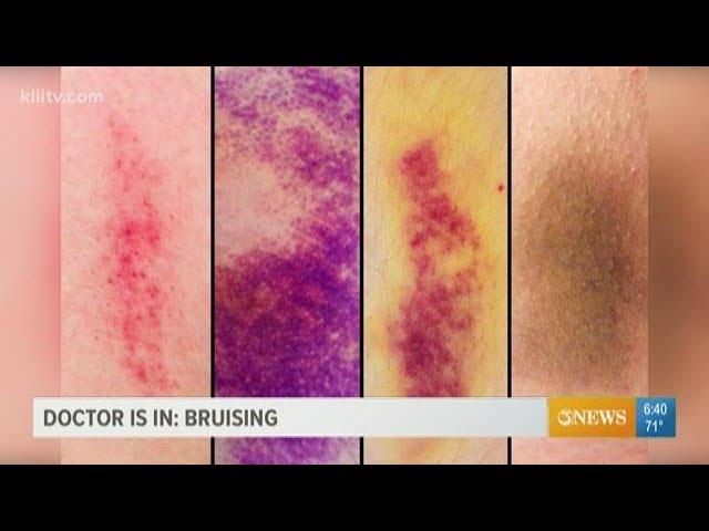Age bruises old Bruising in