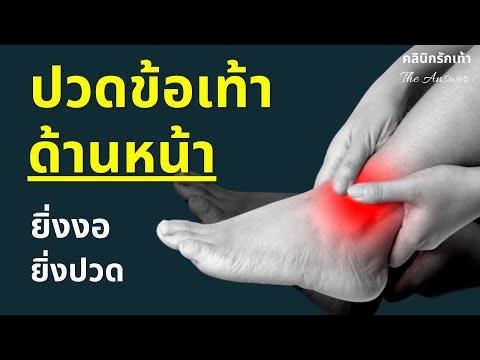 ปวดข้อเท้าด้านหน้า เดินแล้วปวด กระดกยิ่งปวด รักษายังไง- Ankle Impingement