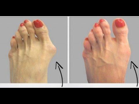 La forma m s facil y sencilla de eliminar los juanetes de for Operacion de pies