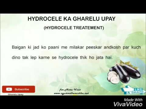 Hydrocele treatment medicine  हाइड्रोसील (अंडकोष) दूर करने २३ घरेलु नुस्खे