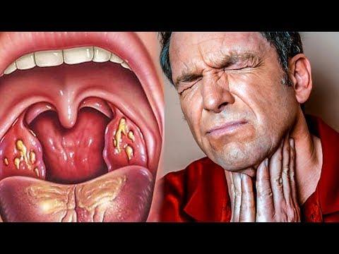 Вот как избавиться от ангины и боли в горле за 4 часа. Детям не рекомендуется, содержится алкоголь.