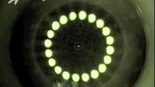 INTRACOR Femtosecond laser for presbyopia correction-Nikos G. Tsioumas, M.D.