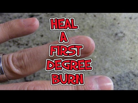 How To Heal A First Degree Burn - YouTube