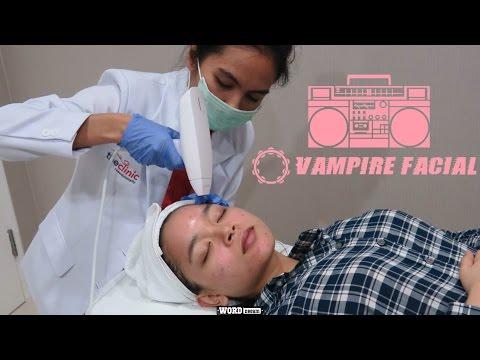 Vampire Facial | Bahasa Indonesia