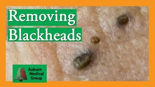Repeat youtube video Removing Blackheads (Popping) | Auburn Medical Group