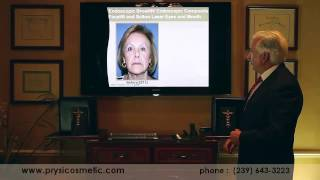 Endoscopic Composite Facerfit by Dr. Mark Prysi - Naples, FL
