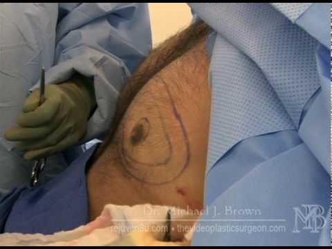 Male breast reduction using Ultrasonic Liposuction
