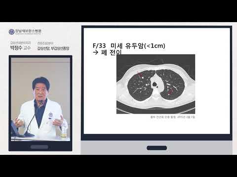 [강남세브란스] 갑상선암, 그 잡다한 걱정거리들