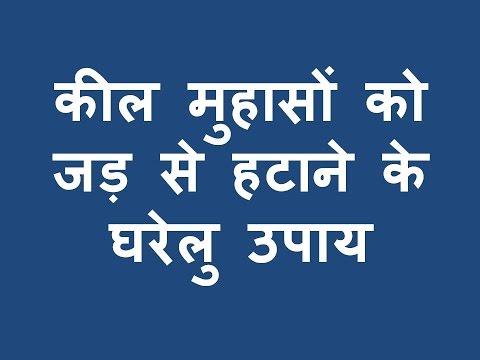 कील मुहासों को जड़ से हटाने के  घरेलु Kil Muhaso ko jad se hatane ke ghrelu upay