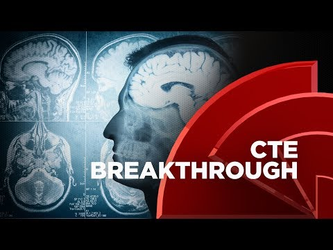 New Findings May Allow Doctors To Diagnose CTE, Dr. Bennet Omalu Weighs In On The Research