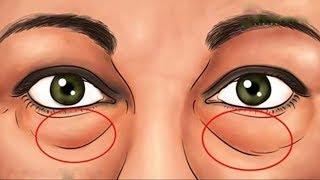 De de los caseros debajo deshacerse las ojos remedios bolsas cómo