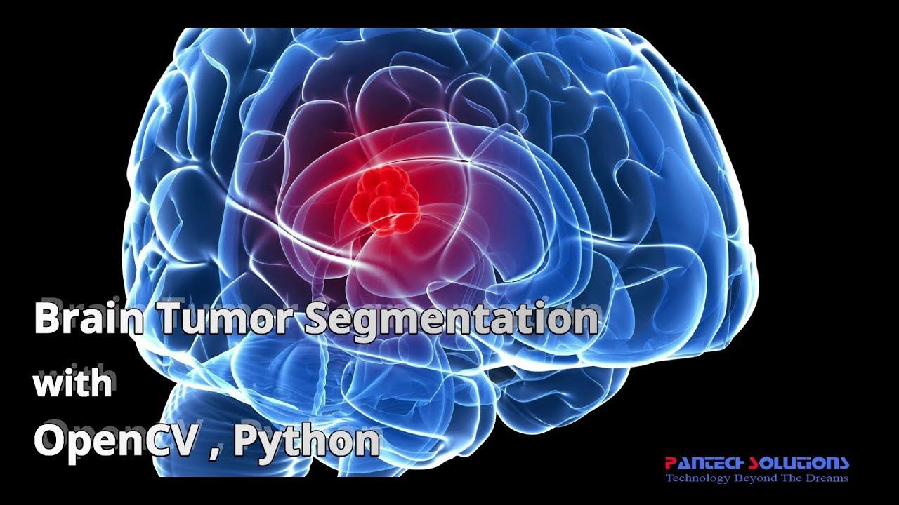 Brain Tumor Segmentation Using Neural Networks