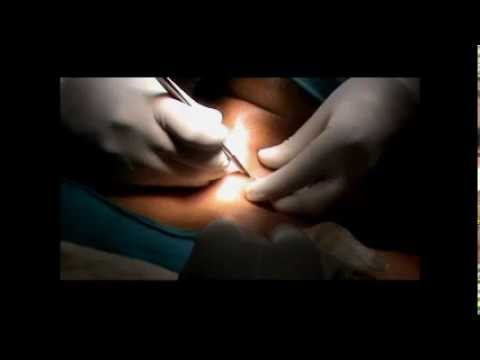 Total Thyroidectomy--Surgical tips- Rajnish Talwar.wmv