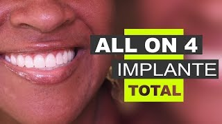 Implace Implantes - Protocolo All On 4