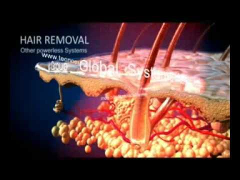 Innolight Pro ®.IPL + RF System -TECNOESTHETIC-