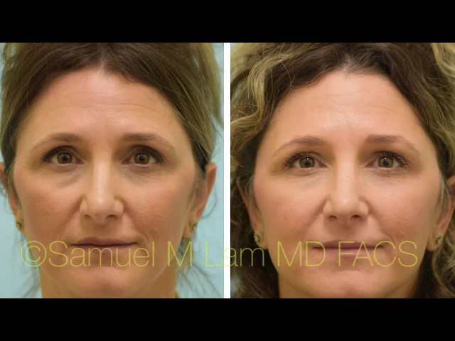 Dallas Eyelid Filler Testimonial
