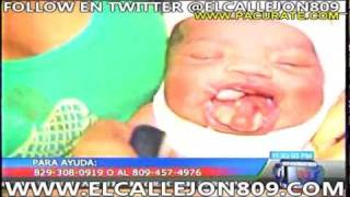 Nace Niña de 5 Lenguas en Republica Dominicana