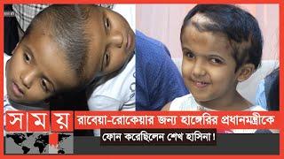 ৪৮ বার অপারেশন শেষে বাড়ি গেলো 'জোড়ামাথার' রাবেয়া-রোকেয়া ! | Conjoined Twins | Somoy TV