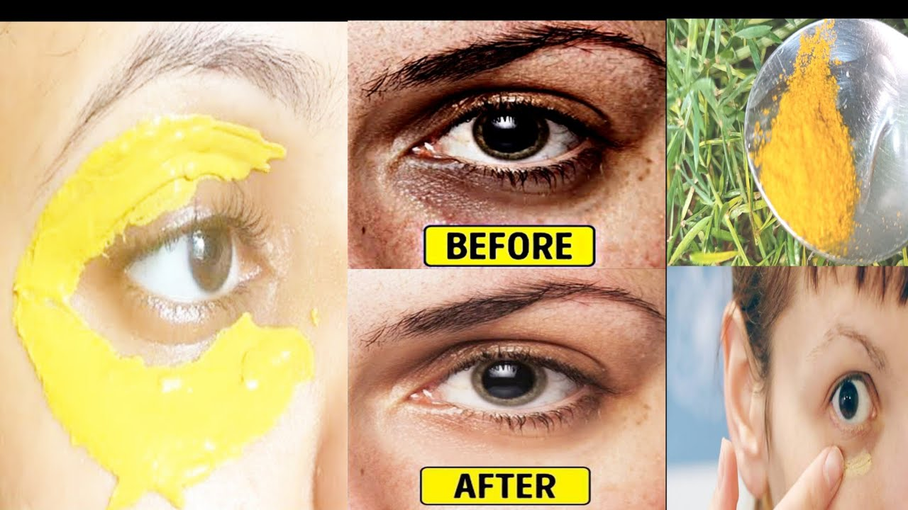 Remove Eye bags & dark circles | Use Turmeric eye mask ...