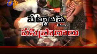 School Bus Accident More Than 20 Children Were Bought Into Yashoda Hospital, Secunderabad
