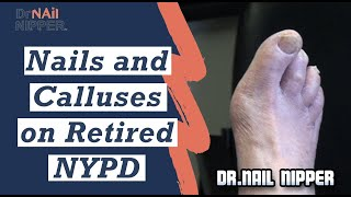 Nails and Calluses on Retired NYPD Detective 2020