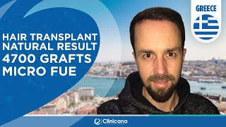 Hair Transplant Turkey | Athens Greece Reviews | Clinicana