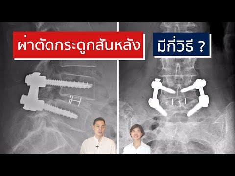 การผ่าตัดกระดูกสันหลัง มีกี่วิธี | EasyDoc Family Talk EP.21