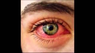 Cómo curar los ojos rojos e irritados