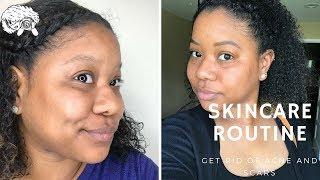 MY SKINCARE ROUTINE 2018 | Oily Skin, Scars, Acne Prone Skin