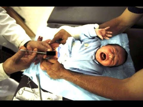 CIRCUMCISION is psychic VIOLENCE- Research it and stop it!
