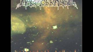 Watch Haemorrhage Im A Pathologist video