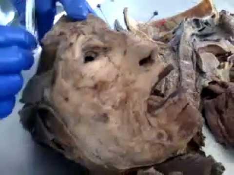 practica de semicara sistema respiratorio UNFV anatomia - YouTube