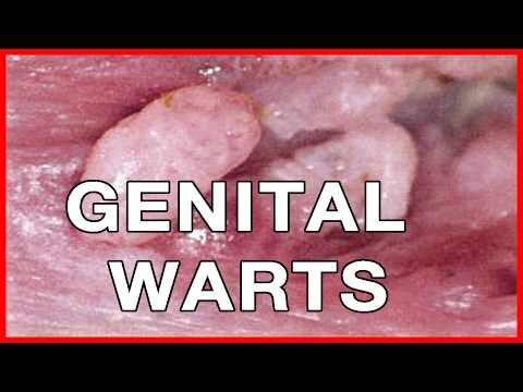 Home And Natural Remedies For Genital Warts // How To Remove Genital Warts At Home