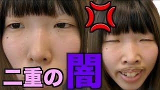 【瞼オワタ】大量の二重アイテムで一重ブスが本当に二重になるのか試してみた! thumbnail