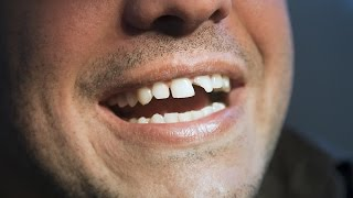 How to Deal with Broken Teeth   Tooth Care