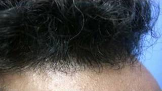 Hair Transplant - Doctor Wong Patient 1680 Grafts - 1 Session